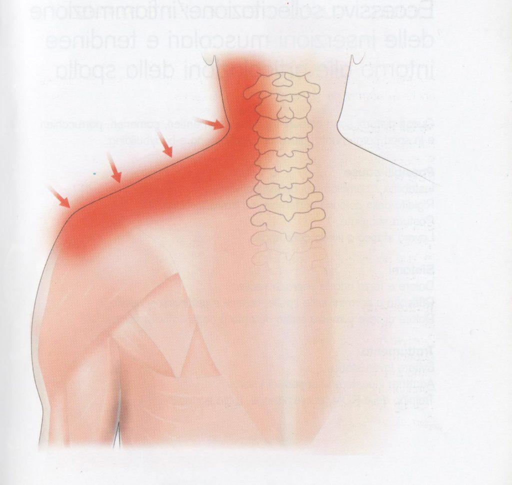 Dolore muscolare a collo e spalle