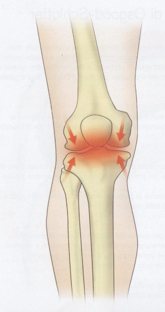 Lesione da usura del ginocchio (osteoartrite)
