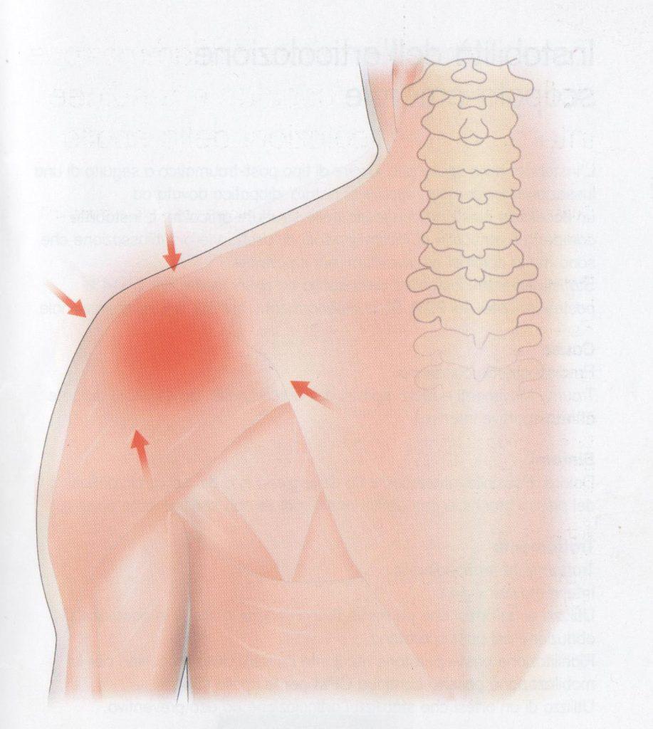 Infiammazione – dolore dell'articolazione della spalla