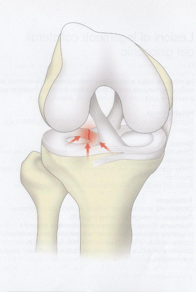 Lesioni al menisco