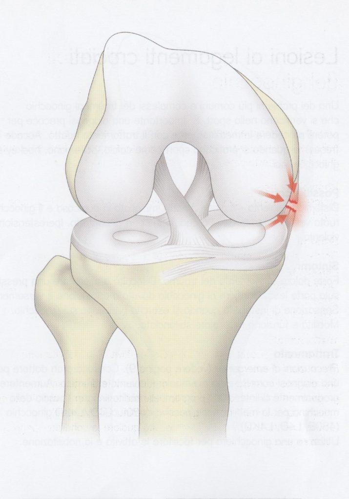 Lesione ai legamenti collaterali del ginocchio