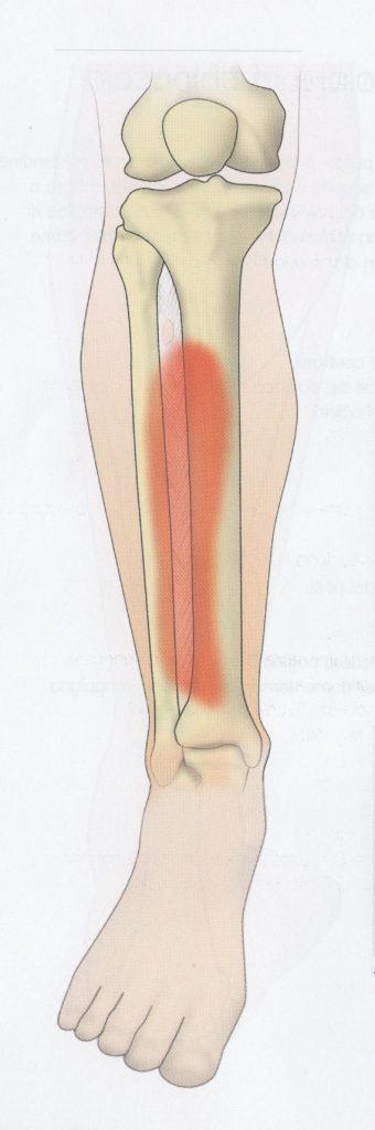 Sindrome della loggia del tibiale anteriore