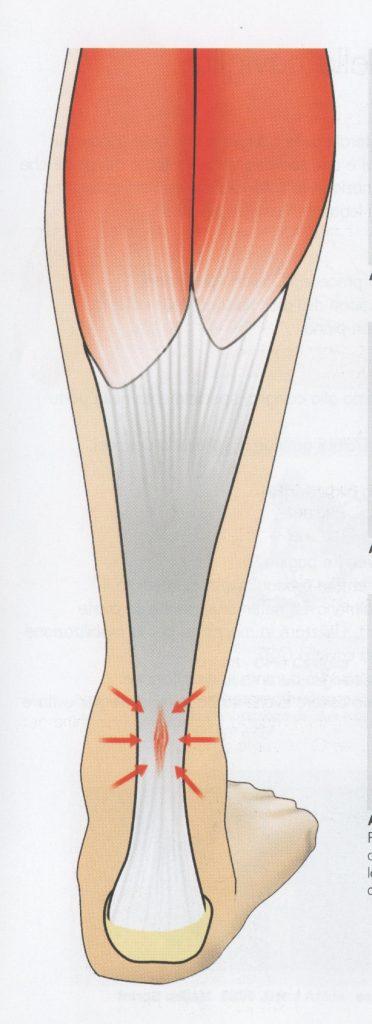 Patologia al tendine di Achille (Achillodinia)