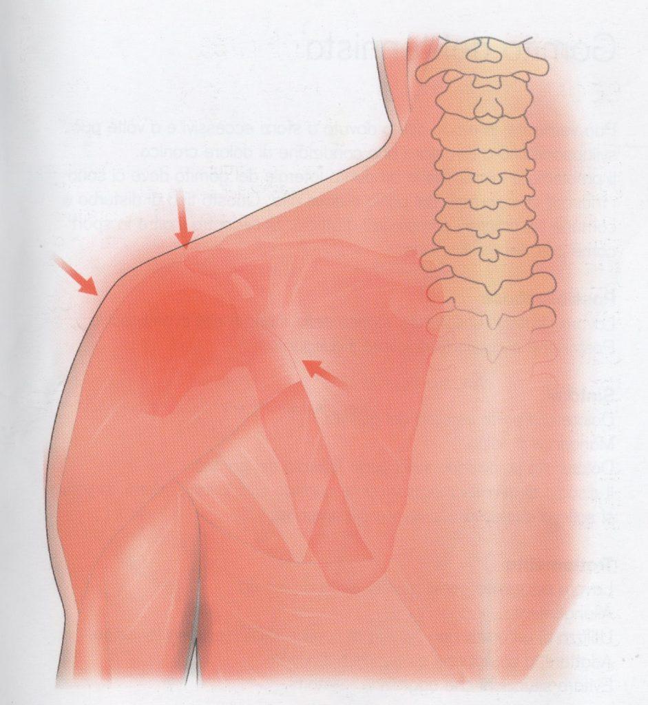 Instabilità dell'articolazione della spalla