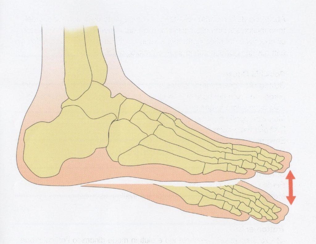 Paralisi del nervo peroneo