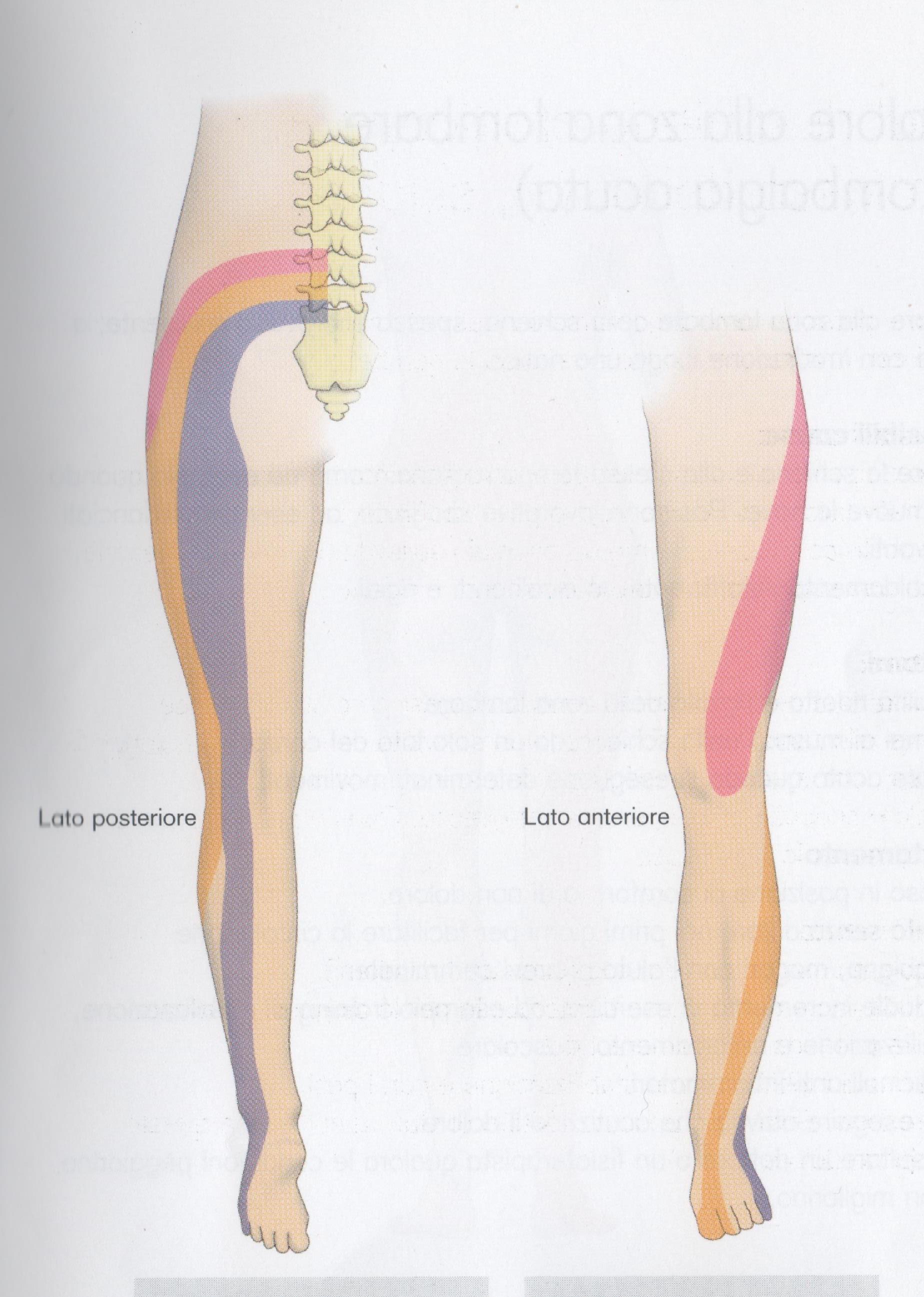 Mal di schiena, sciatica - Medical Farma ortopedia Bergamo