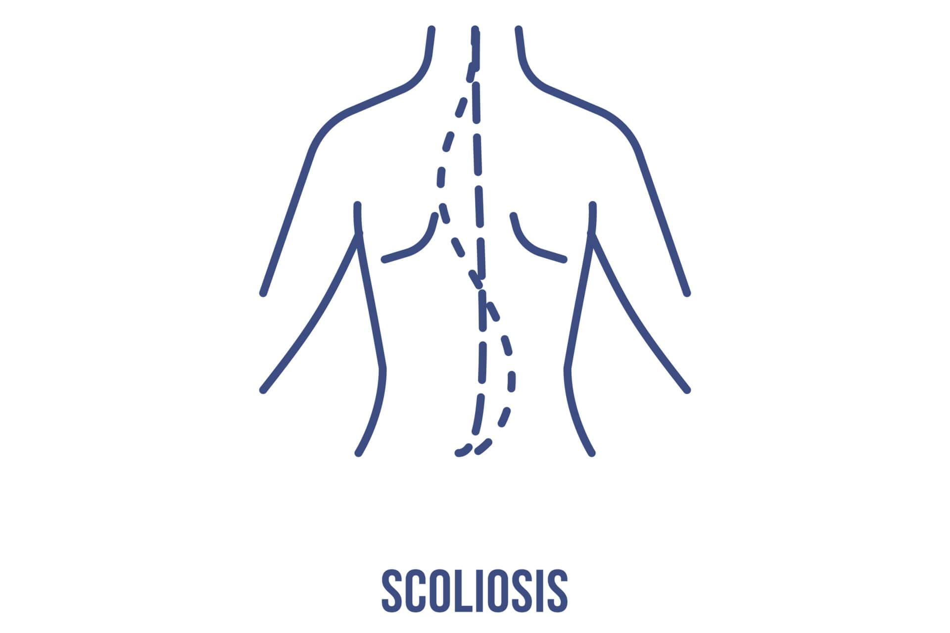 La Scoliosi
